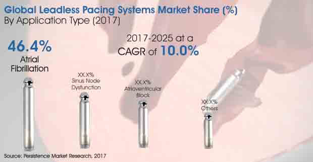 Leadless Pacing Systems Market
