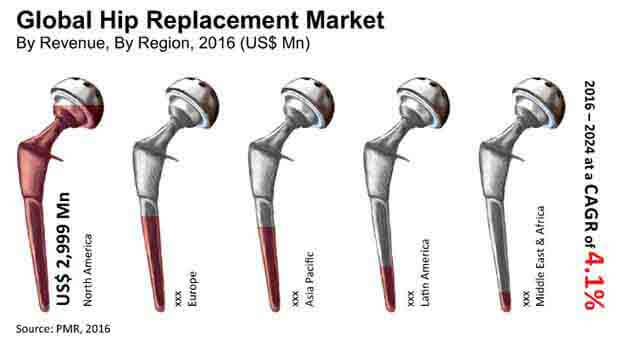 hip replacement size prothesis