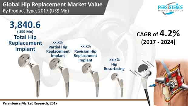 hip-replacement-market.jpg