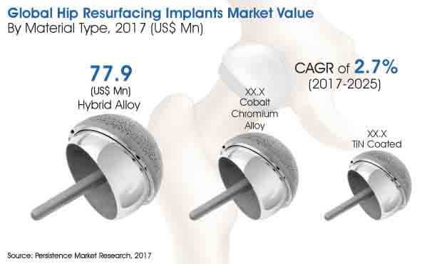 hip resurfacing implants market