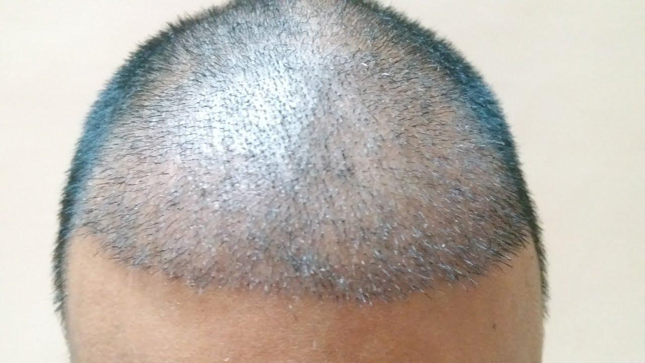 μεταμοσχευση μαλλιων