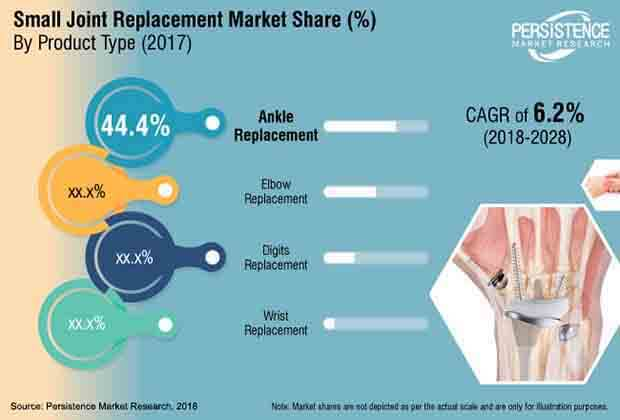 small-joint-replacement-market.jpg